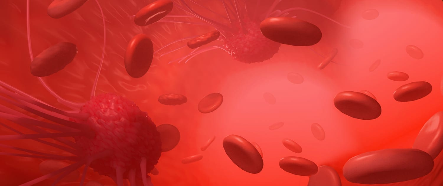 An illustration related to cancer cells attacking the tissue in the blood stream as they spread