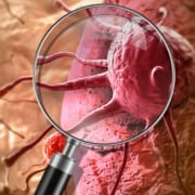 CGI image of a magnifying glass looking at a cancerous cell